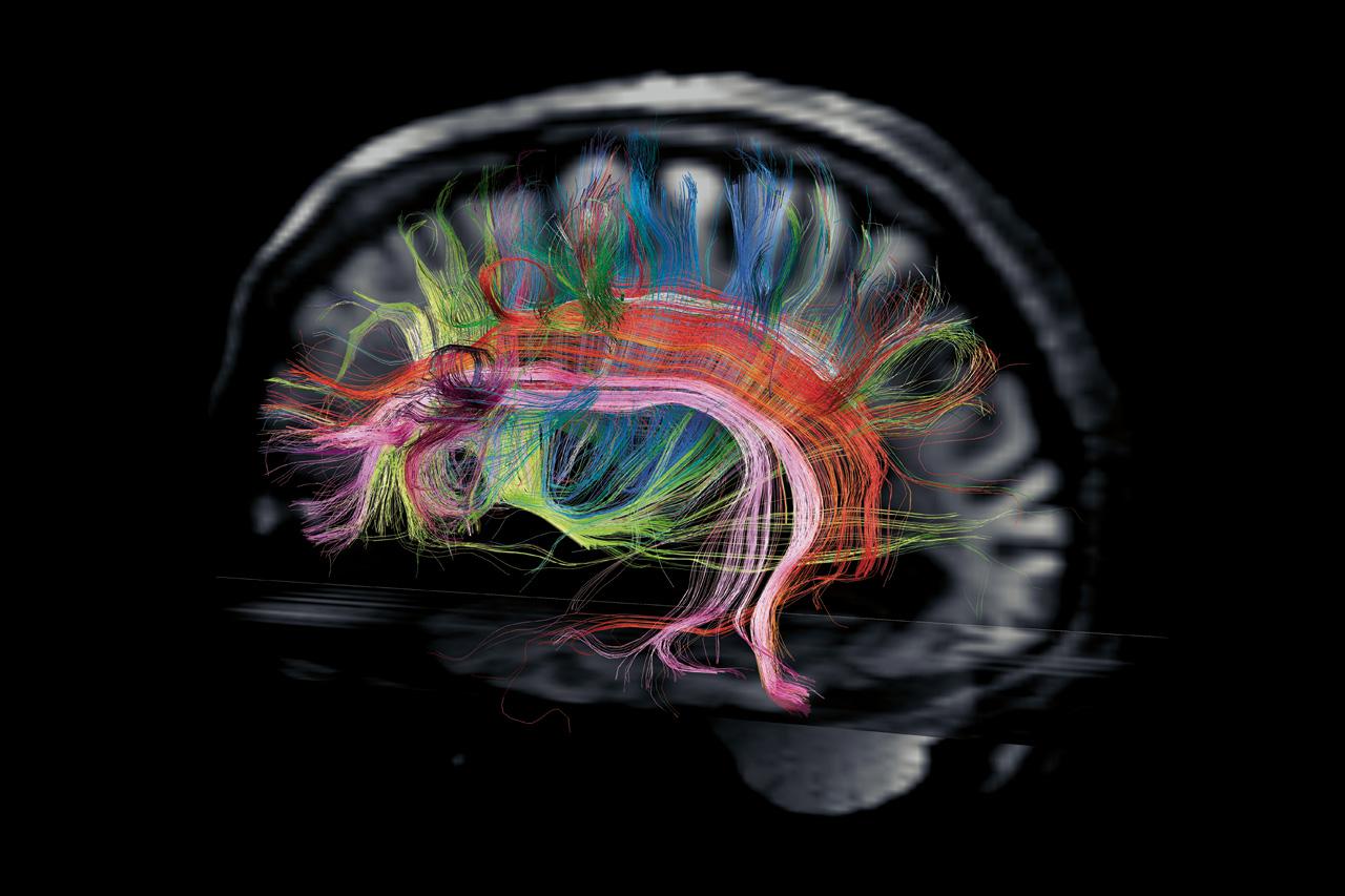 Le cerveau et les neurones, comment ça marche ?